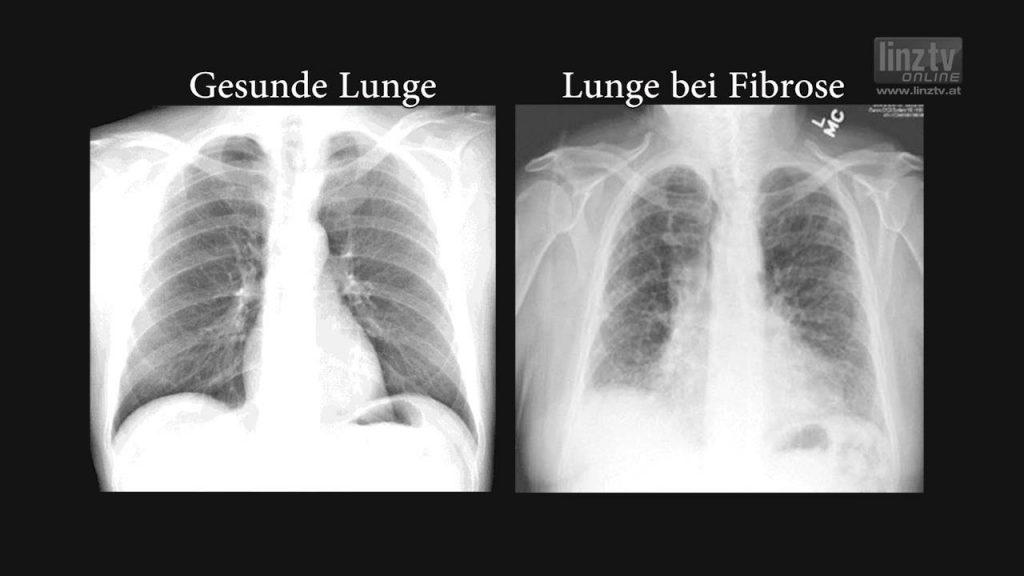 Elisabethinen: Lungenfibrose