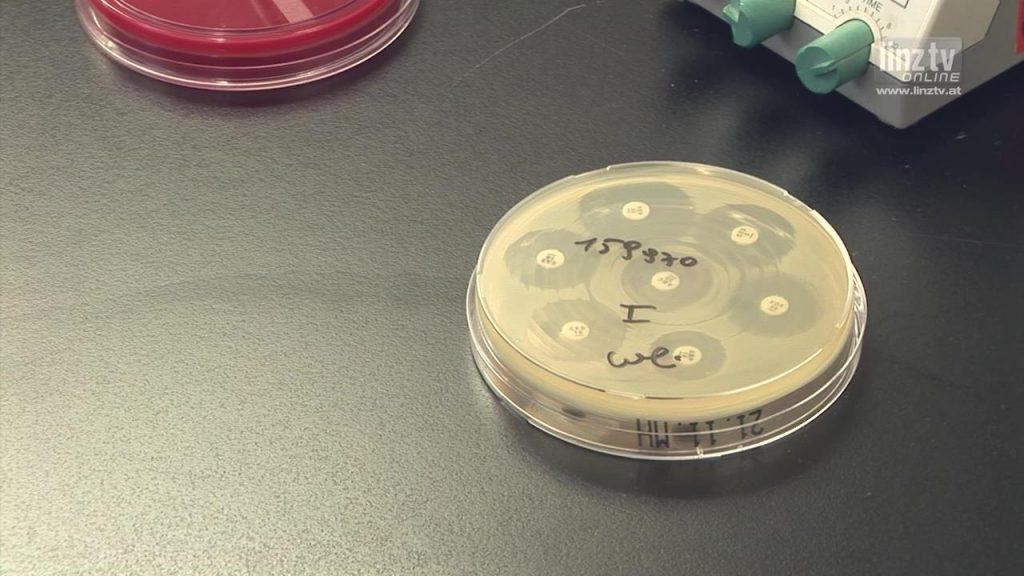 Krankheitserreger schneller erkennen