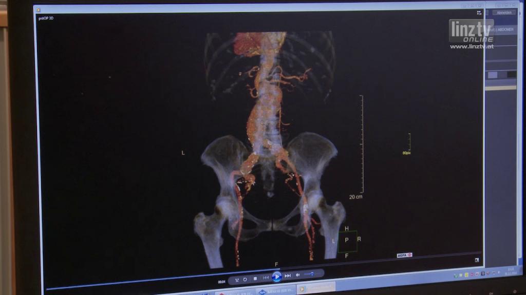 Chimney-Technik bei Aortenaneurysma