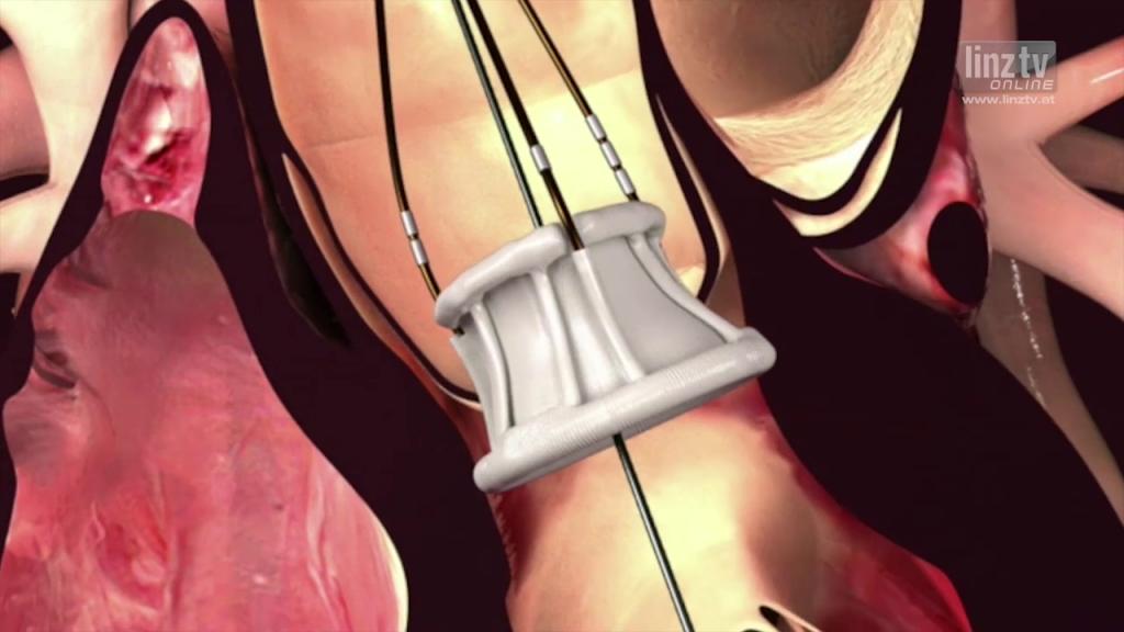 Neue künstliche Herzklappe