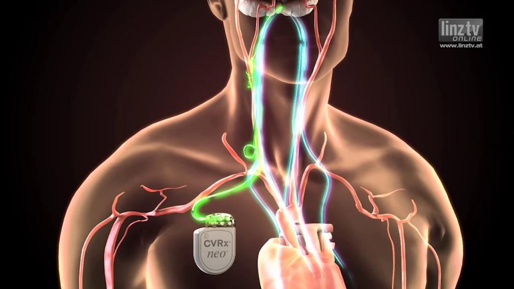 Barorezeptor-Stimulation bei Bluthochdruck