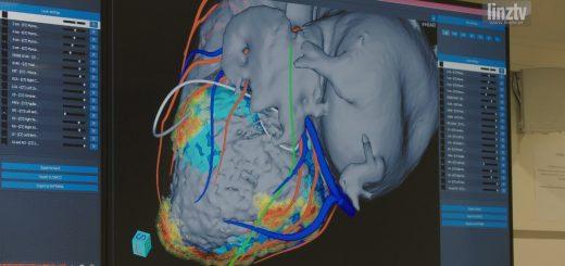 Ordensklinikum 3D-Herz